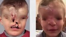 الطفل المغربي يحيى يستعيد ملامح وجهه بأسترليا