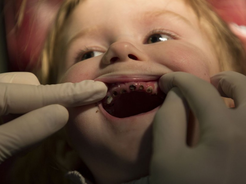 Iana,a four years old girl from Narodichi is being checked by a dentist. After Chernobyl's accident, this region has turned into one of the poorest areas in Ukraine affecting the most vulnerable. Narodichi, UKRAINE - 26/02/2016./VALEROQUINTINA_UKR.014/Credit:Quintina Valero/SIPA/1604112020