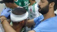 """إلى متى سيتقاتل الإخوة: رقم مهول لضحايا أحداث الشغب بين """"الكرين بويز"""" و""""درب السلطان"""" في مباراة الرجاء وكارا برازافيل"""