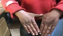 صورة طفل بيدين متجرحتين بسبب البرد تلهب الفايسبوك المغربي وتخلف تعاطفا كبيرا